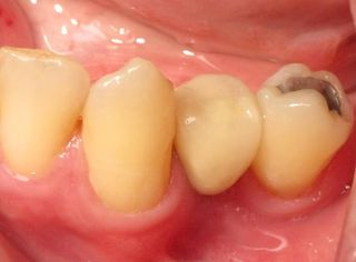 Mini implant premolar crown