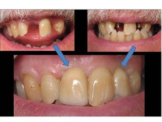 Before after mini dental implants porcelain crowns