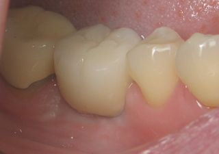Mini Implant Crown Molar view 2