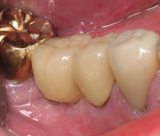 Mini Dental Implant Crown Picture