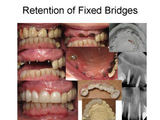 Retention of Fixed Bridges