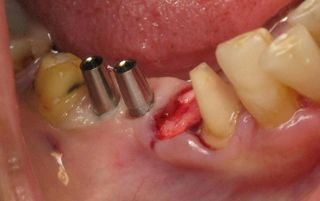 Mini dental implants secure prep