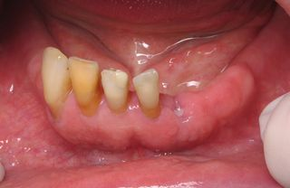 Broken lower front tooth
