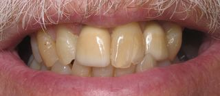 Crowns over mini dental implants