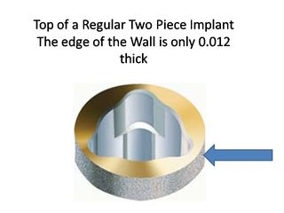 Regular Implant
