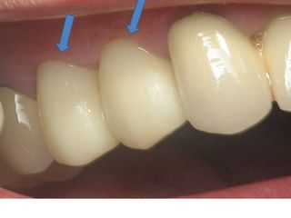 1 yr follow up 4 & 5 crowns close up arrows