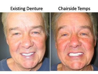 Denture -Minis and Temp Bridge