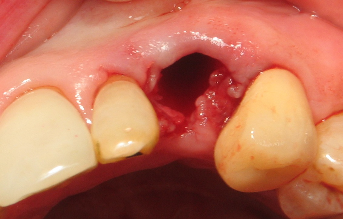 List Of Synonyms And Antonyms Of The Word Human Canine Tooth Extraction