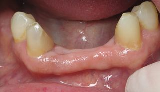 Without partial denture