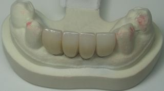 Mini Dental Implant Crowns on model
