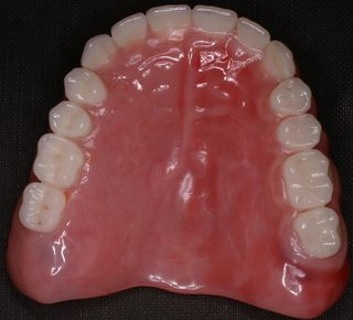 Cosmetic upper denture