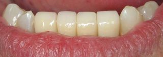 Mini implant crowns in mouth