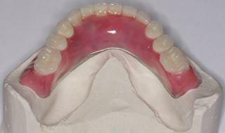 ToothSetup Lingual