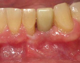 Dental Implant Teeth Charlotte NC