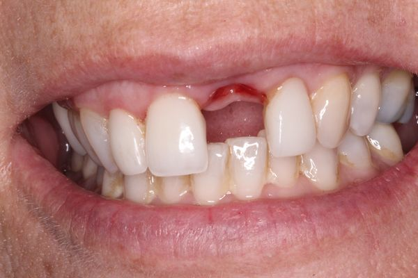 Implant Dentist Charlotte Nc Implant Crown Front Tooth